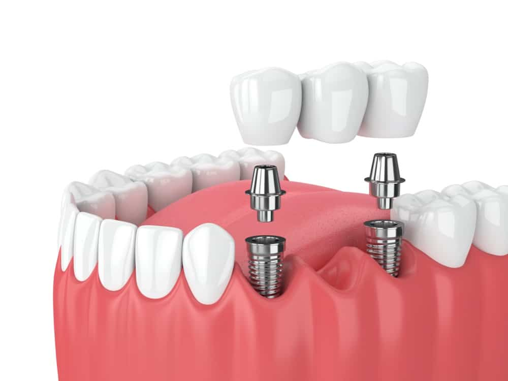 Dental Implants: Procedure, Advantages, Risks & More